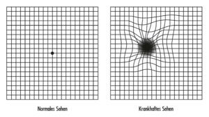 Das Amsler-Gitter oder Amsler-Netz ist ein bei AMD – Altersbedingte Makuladegeneration einfacher Funktionstest